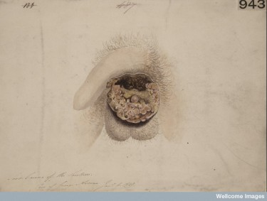 L0062114 Chimney sweep's cancer of the scrotum Credit: St Bartholomew's Hospital Archives & Museum, Wellcome Images. Wellcome Images images@wellcome.ac.uk http://wellcomeimages.org Watercolour drawing of a case of chimney sweep's cancer. The growth on the scrotum is part warty, part scabbed and in part deeply and irregularly ulcerated. 6 Jan 1849 By: Delamotte, William AlfredSt Bartholomew's Hospital Archives & Museum Published: - Copyrighted work available under Creative Commons Attribution only licence CC BY 4.0 http://creativecommons.org/licenses/by/4.0/