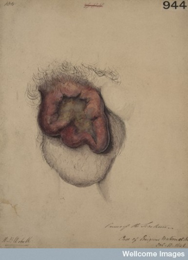 L0062115 Cancer of the scrotum Credit: St Bartholomew's Hospital Archives & Museum, Wellcome Images. Wellcome Images images@wellcome.ac.uk http://wellcomeimages.org Watercolour drawing of a large cancerous ulcer of the scrotum not connected with soot. Drawn by Horace Benge Dobell, physician, whilst a student at St Bartholomew's Hospital Medical School. 13 Oct 1848 By: Dobell, Horace BengeSt Bartholomew's Hospital Archives & Museum Published: - Copyrighted work available under Creative Commons Attribution only licence CC BY 4.0 http://creativecommons.org/licenses/by/4.0/